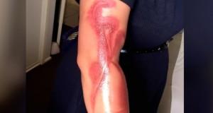 brazo-quemado